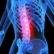 Spinal-Cord-Injuries